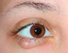 Як лікувати ячмінь на оці в домашніх умовах