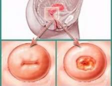 Чи небезпечна ерозія шийки матки при вагітності